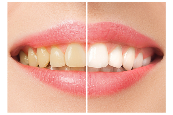 Tetracycline Staining And Bleaching Is It Effective Microcopy