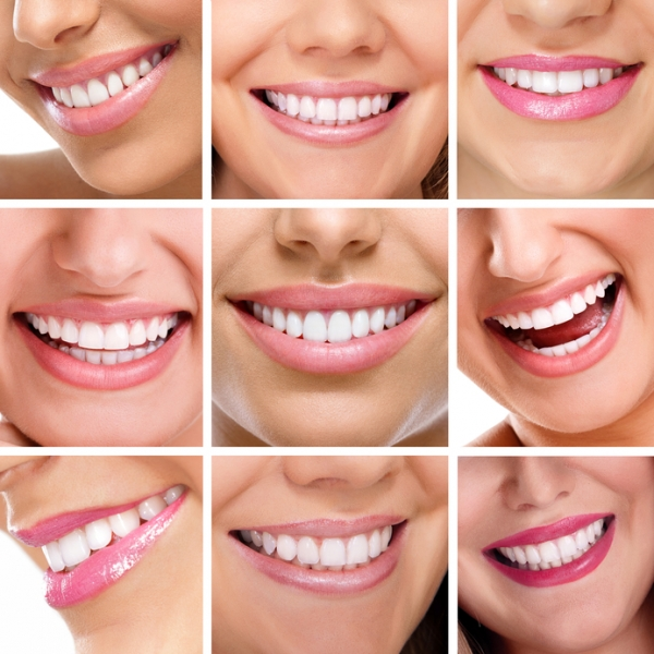 Should you recommend at-home teeth whitening to your patients?