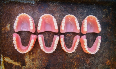 Protocol for a broken denture