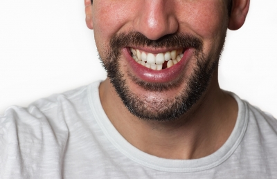 Tooth Extractions - General Dentist or Oral Surgeon?