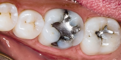 What is an Amalgam Separator and Why Do I Have to Have One?